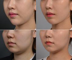 #Banobagi #Plasticsurgery #Cosmeticsurgery #Beauty #Women #Gangnam #Seoul #Korean #Makeover #Life #Health #Faceshape #Faceline #Facecontour #Jaw #Jawline #orthodontic #braces #totalmakeover #teethcorrection #kbeauty #beautiful #newlife #changelife #plasticsurgeryinkorea #accu #accusculpt #acculift