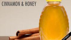The Healing Benefits of CINNAMON & HONEY