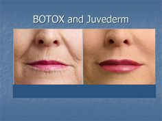 Botox and Juvederm Can Give You Instant Natural Looking Results to Help You Look Younger!
