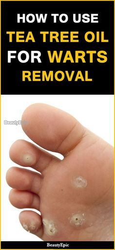 How to Remove Warts With Tea Tree oil?   Natuurlike