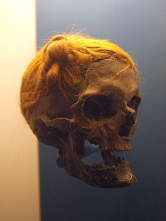 """The """"Osterby Man"""" was found in a peat bog in 1948 CE near Osterby, Germany and has been dated to between 75 and 130 CE. He sports a Suebian knot, a hairstyle associated with the Suebi (Alemanni). Now on display at the State Archaeological Museum at Gottorf Castle in Schleswig, Germany."""
