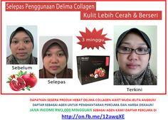 Senarai Testimoni Hebat Delima Collagen Power Awet Muda~Jana Bonus RM5,000 Sebulan Agen Sambilan | Kerja Sambilan Internet Income RM3,688,933.00
