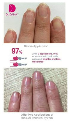 Dana Nail Renewal System - The Beauty Guide Beauty Guide, Healthy Nails, Nail Treatment, Nail Care, You Nailed It, Manicure, Alcohol, Nu Skin, Skin Products