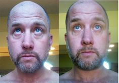 NeriumFresh.com  this is me after 7 days ! this stuff works... here is another real review http://youtu.be/tujxXfrklEo