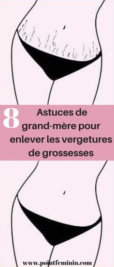 8 tips from the grandmother for removing stretch marks - masque - Pregnancy White Stretch Marks, Stretch Mark Removal, Feeling Nauseous, Anti Cellulite, New Mums, Skin Problems, Loose Weight, Perfect Body, Body Care