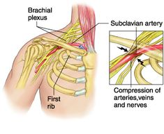 Thoracic outlet syndrome (TOS) refers to a spectrum of disorders encompassing three interrelated and uncommon syndromes. The first, neurogenic TOS, arises from compression of the nerves (brachial plexus) in the base of the neck. The second, vascular TOS, arises from compression of the arteries and veins under the collarbone (subclavian) or arm (axillary). The third syndrome, sometimes called disputed neurogenic TOS, arises from nerve compression of less specific origin and accounts for the…