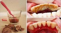 Dental plaque, tartar and bleeding gums are part of the .- Tandplak, tandsteen en bloedend tandvlees behoren tot het verleden dankzij walno… Dental plaque, tartar and bleeding gums are a thing of the past thanks to walnuts, GREAT! Health Remedies, Home Remedies, Natural Remedies, Gum Health, Oral Health, Best Teeth Whitening, Bad Breath, Health Advice, Healthy Tips