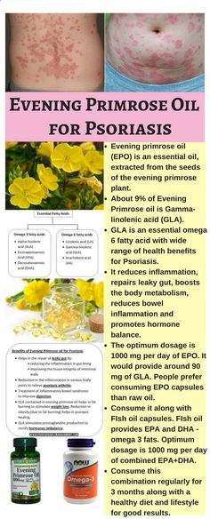 Psoriasis Free - Evening Primrose oil benefits for Psoriasis and Psoriasis Arthritis #EveningprimroseoilPsoriasis #Essentialoilspsoriasis - Professors Predicted I Would Die With Psoriasis. But Contrarily to their Prediction, I Cured Psoriasis Easily, Permanently & In Just 3 Days. I'll Show You!