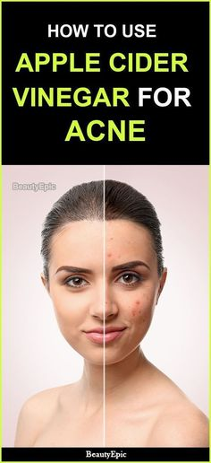 You Cure Your Acne With Apple Cider Vinegar? How to use apple cider vinegar for acne Skin Care Regimen, Skin Care Tips, Skin Tips, Organic Skin Care, Natural Skin Care, Natural Health, Vinegar For Acne, Acv For Acne, Apple Cider Vinegar Facial