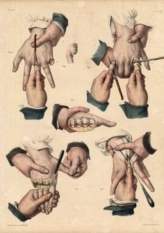 Medical Drawings, Medical Anatomy, Jean Baptiste, Digital Art Tutorial, Human Anatomy, Art Tutorials, Vintage Posters, Art Inspo, Illustration