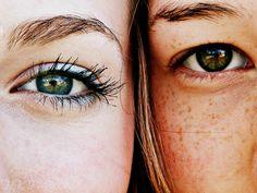 Pimples & Freckles