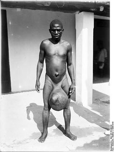 THE ELEPHANT DECEASE ~ Man with massive scrotal elephantiasis, Tanzania, early 20th century. Elephantiasis occurs in the presence of microscopic, thread-like parasitic worms such as Wuchereria bancrofti, Brugia malayi, and B. timori, all of which are transmitted by mosquitoes. Lymphatic filariasis affects over 120 million people, primarily in Africa and South-East Asia, with about 40 million disfigured and incapacitated by the disease.
