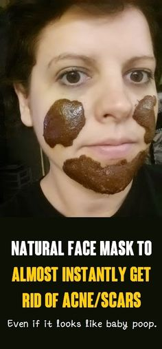The Beauty Goddess: Natural face mask to almost INSTANTLY get rid of acne/scars, Even if it looks like baby poop.