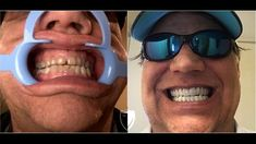 Dental Veneers by Brighter Image Lab Alternative to Glamsmile Perfect Smile Teeth, Misaligned Teeth, Crooked Teeth, Dental Veneers, Smile Makeover, Smile Design, Smile Because, How To Remove, Skin Care