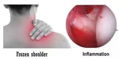 Frozen shoulder: Exercise, Physiotherapy, Cause, Symptoms Shoulder Surgery, Shoulder Joint, Shoulder Muscles, Frozen Shoulder, Self Massage, Crossed Fingers, Healthy Sides, Pressure Points, Homeopathy