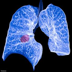 chest ct showing a primary lung cancer Mathematical Model, Some Beautiful Pictures, Prostate Cancer, Health Problems, Lunges, Chemotherapy Drugs, News, Stem Cells, Smoothies