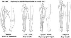 The natural history of the tibial femoral angle is one of considerable bowing (genu varum) at birth, approximately 15 degrees. There is gradual spontaneous correction to zero degrees at one and one-half to two years of age. During the next year, a knock-knee (genu valgum) alignment of 10 degrees to 12 degrees develops which gradually corrects to the normal adult value of 5 to 6 degrees of valgus at about age seven years. This process is identical in boys and girls. (Fig. 1)