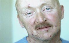 Ελπίδες για οριστική θεραπεία του AIDS: Θεαματικά αποτελέσματα σε Βρετανό ασθενή