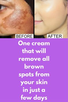 One cream that will remove all brown spots from your skin in just a few days If you are suffering from Acne Scars, Hyper-pigmentation issues and dark circles than this simple home remedy will help you and give you amazing results. Remedy 1 – This is for dry/normal skin You will need 6 tea spoon potato juice 2 spoons of licorice powder Mix both of these in a clean bowl. Apply …
