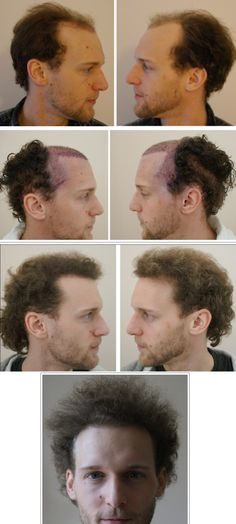Changing Angles and Hair Line Density