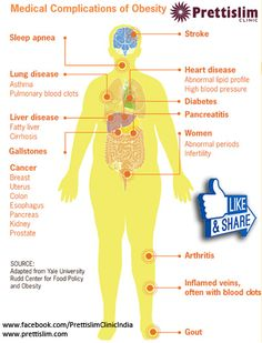 #Medical #Complications Of #Obesity by Prettislim Clinic