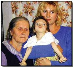Child born with birth defects because of radiation resulting from Chernobyl Chernobyl 1986, Chernobyl Disaster, Chernobyl Nuclear Power Plant, Nuclear War, Ukraine, Bizarre Photos, Human Oddities, Nuclear Reactor, Nuclear Disasters
