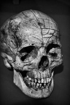 Medical skull