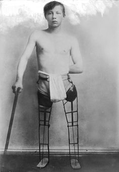 Probably 1800's.Prosthetic legs...........