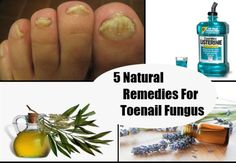 http://mkthlth2.digimkts.com  This is simply the BEST EVER!  toe fungus  5 Natural Remedies For Toenail Fungus