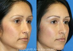 Consider a fat transfer procedure in San Diego - La Jolla California with Dr Karam. Information on fat transfer procedures, full face fat transfer, and micro fat transfers to help restore volume to the face. Plastic And Reconstructive Surgery, Plastic Surgery, La Jolla California, Fat Transfer, San Diego, Facial, Restoration, Personal Style, Building