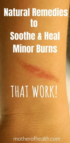 You can treat minor burns up to the second degree from home. There are many options for home treatment for burns using household items. Here are nine home remedies to treat minor burns. Natural Remedies For Burns, Cold Home Remedies, Natural Health Remedies, Herbal Remedies, Natural Health Tips, Natural Healing, Second Degree Burn Treatment, Skin Burn Remedies, Home Remedies