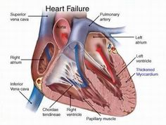 Natural Cure For Congestive Heart Failure - How To Cure Congestive Heart Failure Naturally | Find Home Remedy