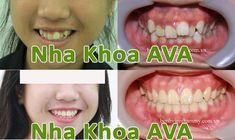 Niềng răng hô, răng thưa, răng mọc lệch uy tín tại tphcm mang lại một hàm răng đẹp hơn mà còn cải thiện đến khuôn mặt của bạn, giúp bạn thêm tự tin.