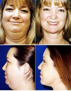 5 Mind Blowing tips to lose face fat fast and easy | Online bee Guys, I didn't even read this. I just thought about the chin flexor thing @Georgia Metz was raving about.