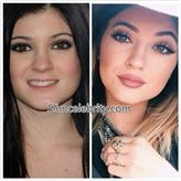 Kylie Jenner Plastic Surgery Before and After Photos: Nose Job, Lip ...
