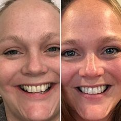 Get clear braces without in-office visits for thousands less than a traditional orthodontist. Get started with a free scan at a Candid Studio. Teeth Alignment, Clear Aligners, Teeth Straightening, Starter Kit, Your Smile, First Step, Beauty Skin, Get Started, 6 Months