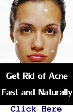 Acne Treatment Solutions: Get Rid of Acne Fast and Naturally