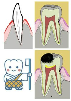 #cavitieshomeremedies