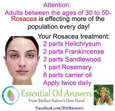 Acne rosacea treatment uk mild rosacea nose,what does rosacea look like on the face top 5 anti aging skin care products,sensitive skin care products ginseng anti aging. Essential Oils For Rosacea, Doterra Essential Oils, Essential Oil Blends, Natural Remedies For Rosacea, Rosacea Remedies, Young Living Oils, Young Living Essential Oils, Natural Remedies, Essential Oils