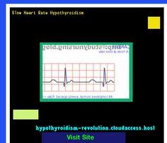 Slow Heart Rate Hypothyroidism 135437 - Hypothyroidism Revolution!