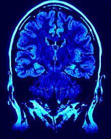 Scans Show Psychopaths Have Brain Abnormalities