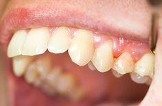 La gingivitis es la etapa inicial de la enfermedad de las encías, que normalmente se produce cuando las bacterias se acumula en las encías.