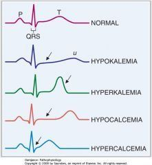 Image result for electrolyte disturbance effect on ECG