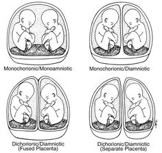 Great visual on twin placenta variations. -Shannon