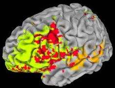 Scientists report that they have mapped the physical architecture of intelligence in the brain.
