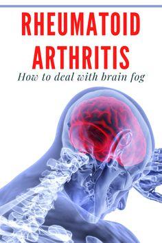 Rheumatoid Arthritis Diagnosis, Polycystic Ovarian Syndrome, Arthritis Pain Relief, Chronic Migraines, Fibromyalgia, Arthritis Diet, Chronic Illness, Chronic Pain, Arthritis