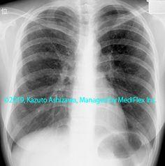 11. その他の肺疾患 症例100:ランゲルハンス細胞組織球症 胸部単純X線写真,『コンパクトX線アトラスBasic 胸部単純X線写真アトラス vol.1 肺』