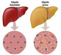 Qué comer si tengo hígado graso. El hígado graso, conocido médicamente como esteatosis hepática, consiste en la acumulación de grasa en este órgano, lo que produce en principio una inflamación que de no ser atendida adecuadamente pue...