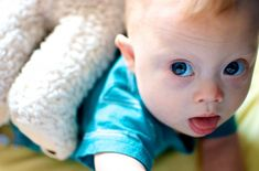 down syndrome baby - Google Search