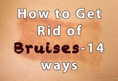 How to Get Rid of Bruises-14 ways: Ice, Comfrey Leaf Compress, Vinegar, Parsley, Pineapple, Herbal Tea Turmeric, St. Johns Wort, Arnica, and Essential Oils